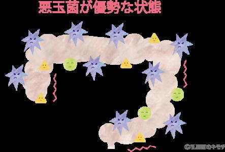 悪玉菌が優勢な状態